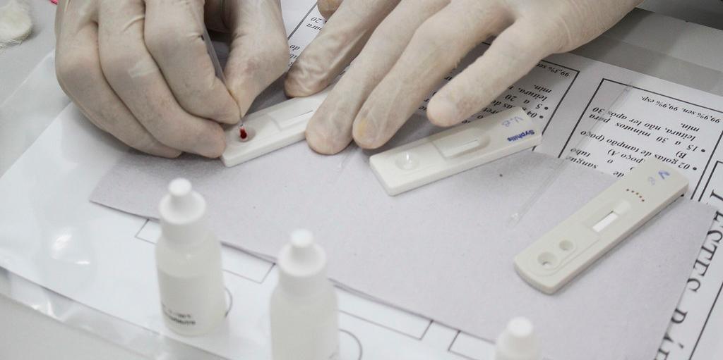Mesmo com o grande número de casos, o orçamento da Coordenação Municipal IST/Aids vem sofrendo reduções constantes